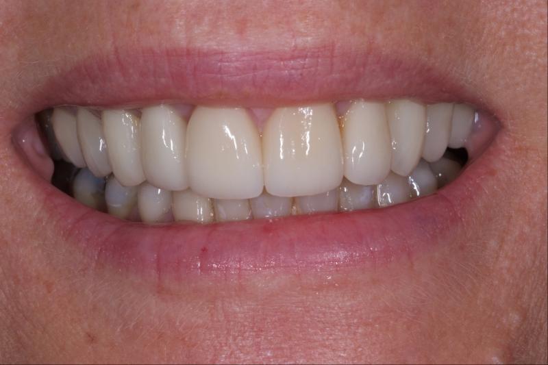 estetisk tandvård stockholm bäst