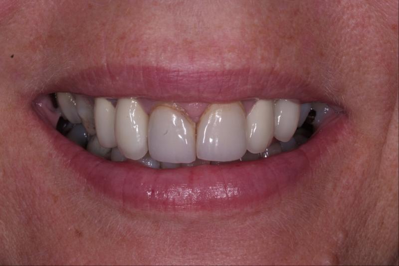 kosmetisk tandvård malmö