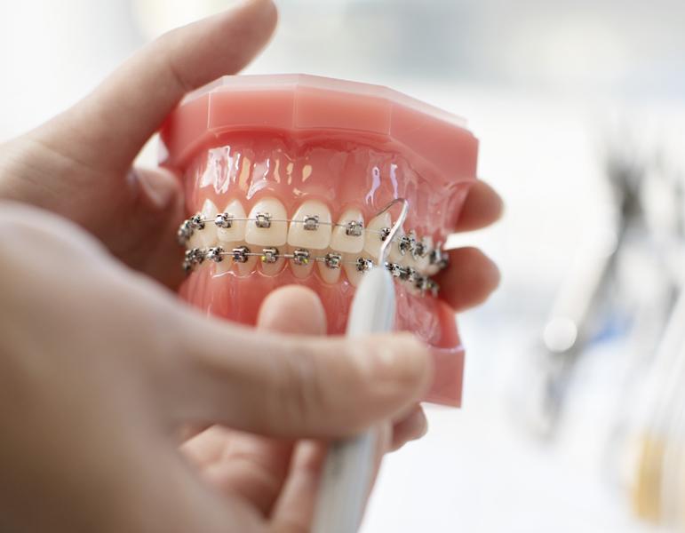 hur mycket kostar tandställning