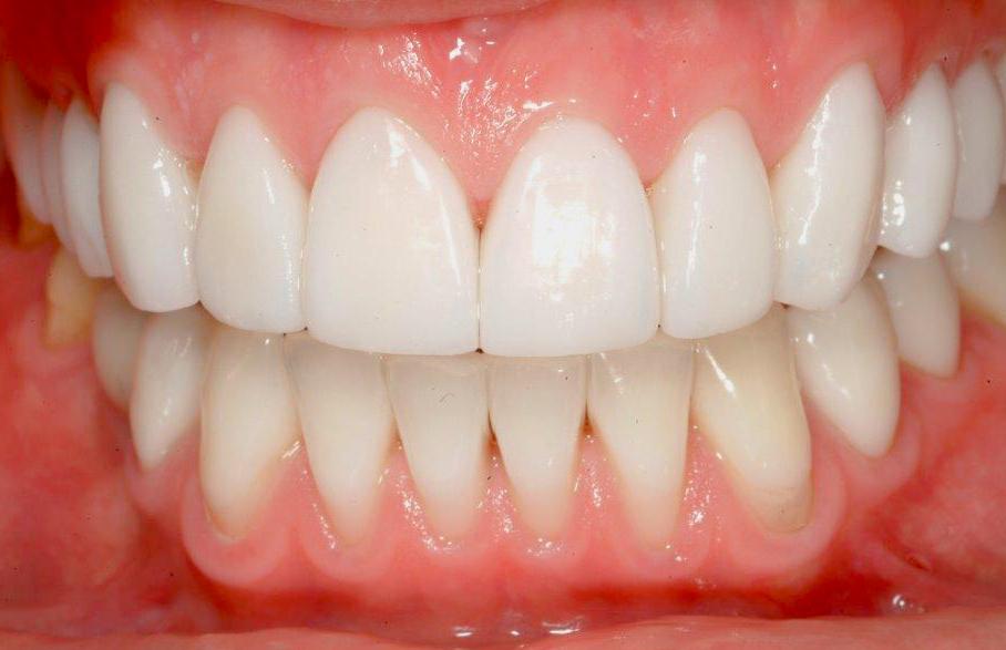 Efter - Blottade tandhalsar