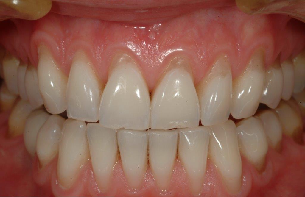 Före - Blottade tandhalsar