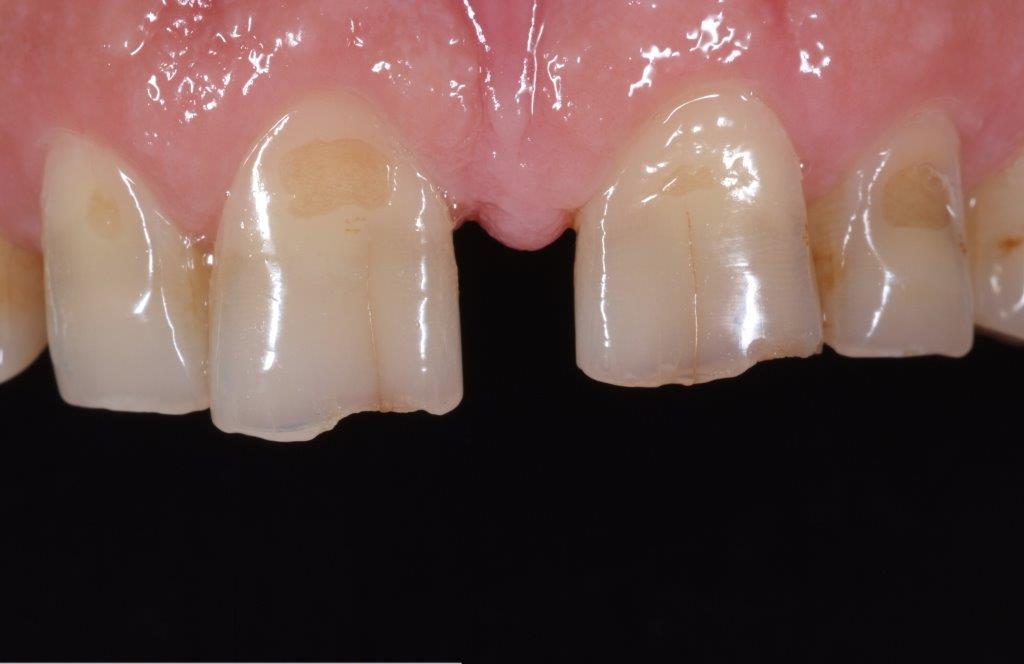 Före - Glesställda tänder