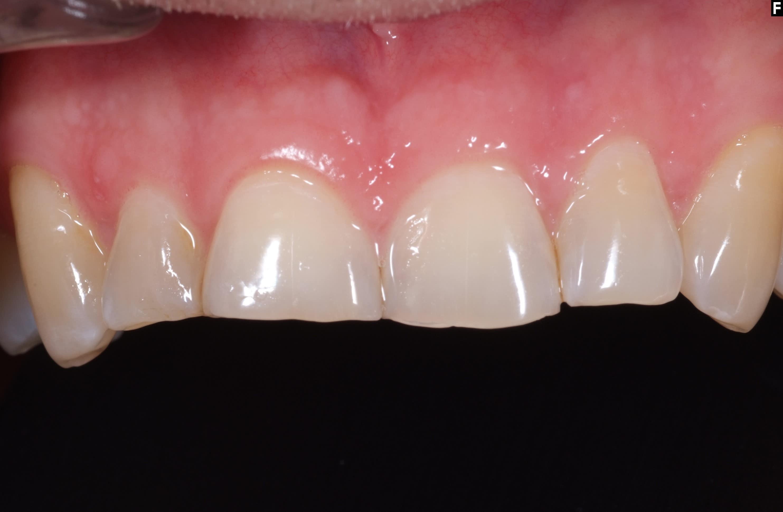 Före - Abraderade tänder