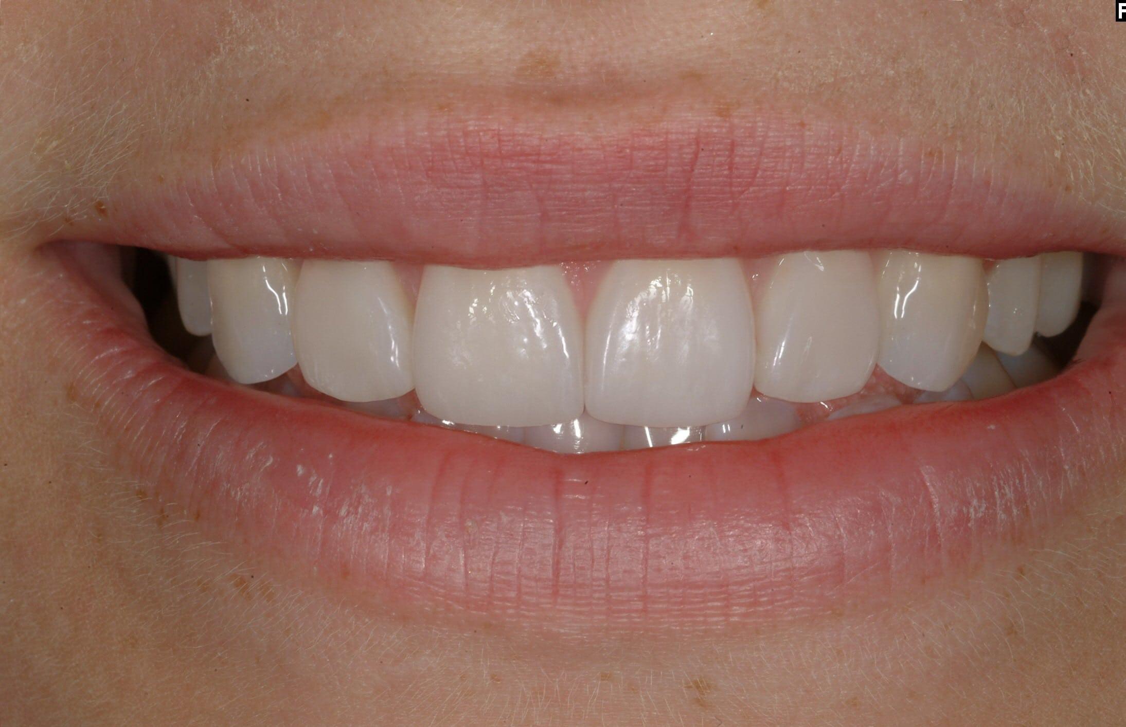 Efter - Glesställda tänder