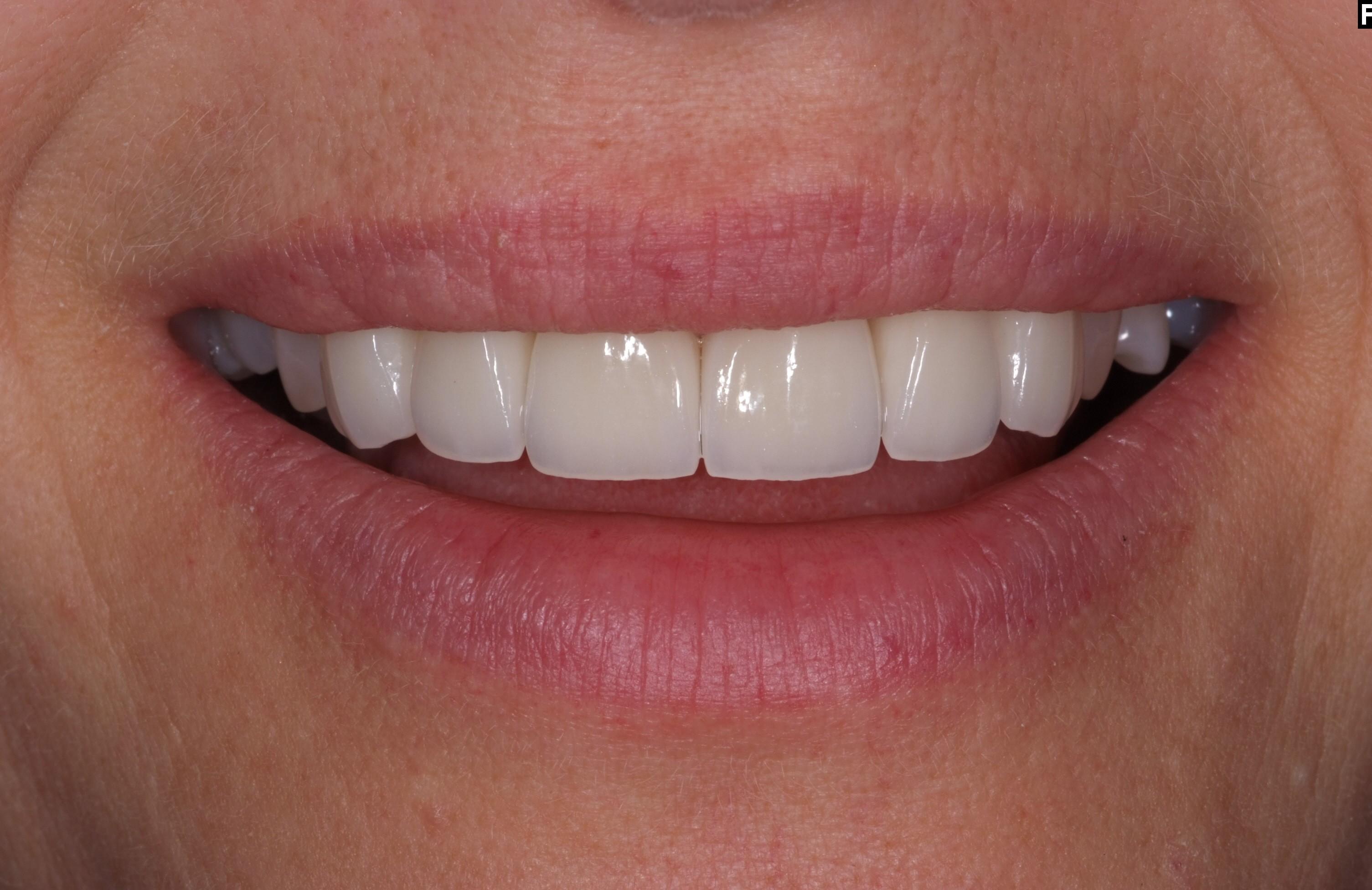 Efter - Missfärgade tänder