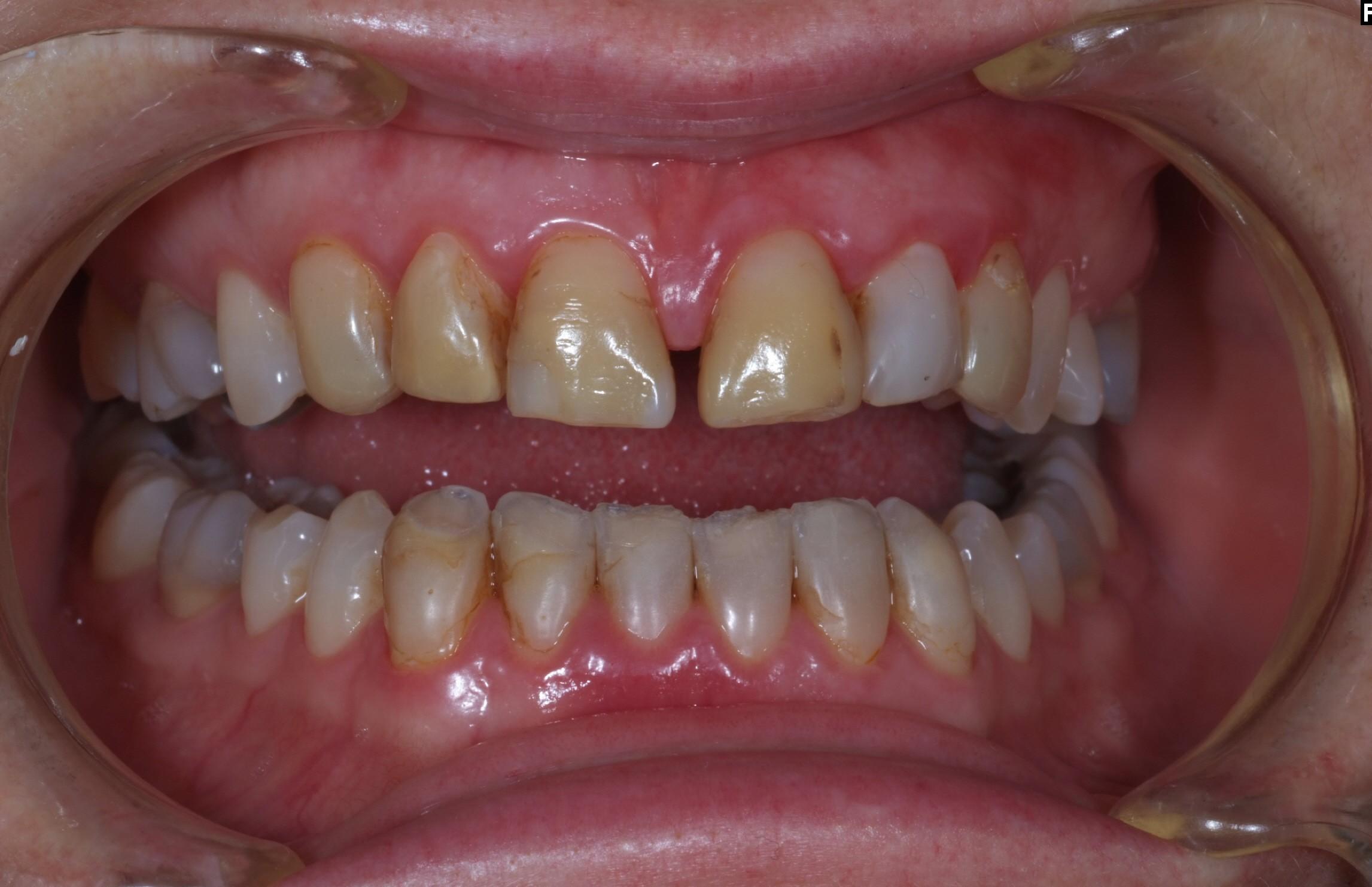Före - Missfärgade tänder