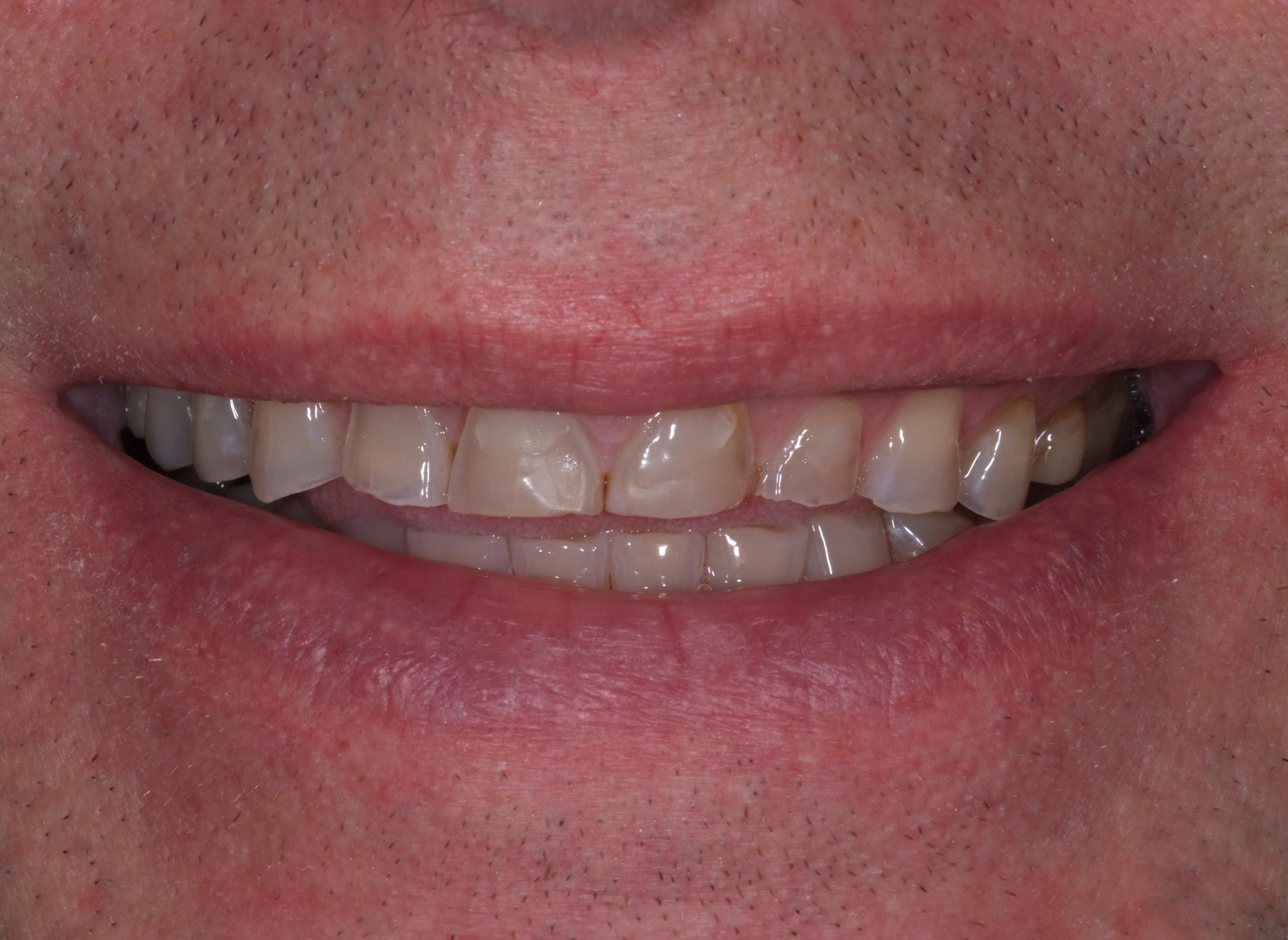 Före - Nedslitna tänder