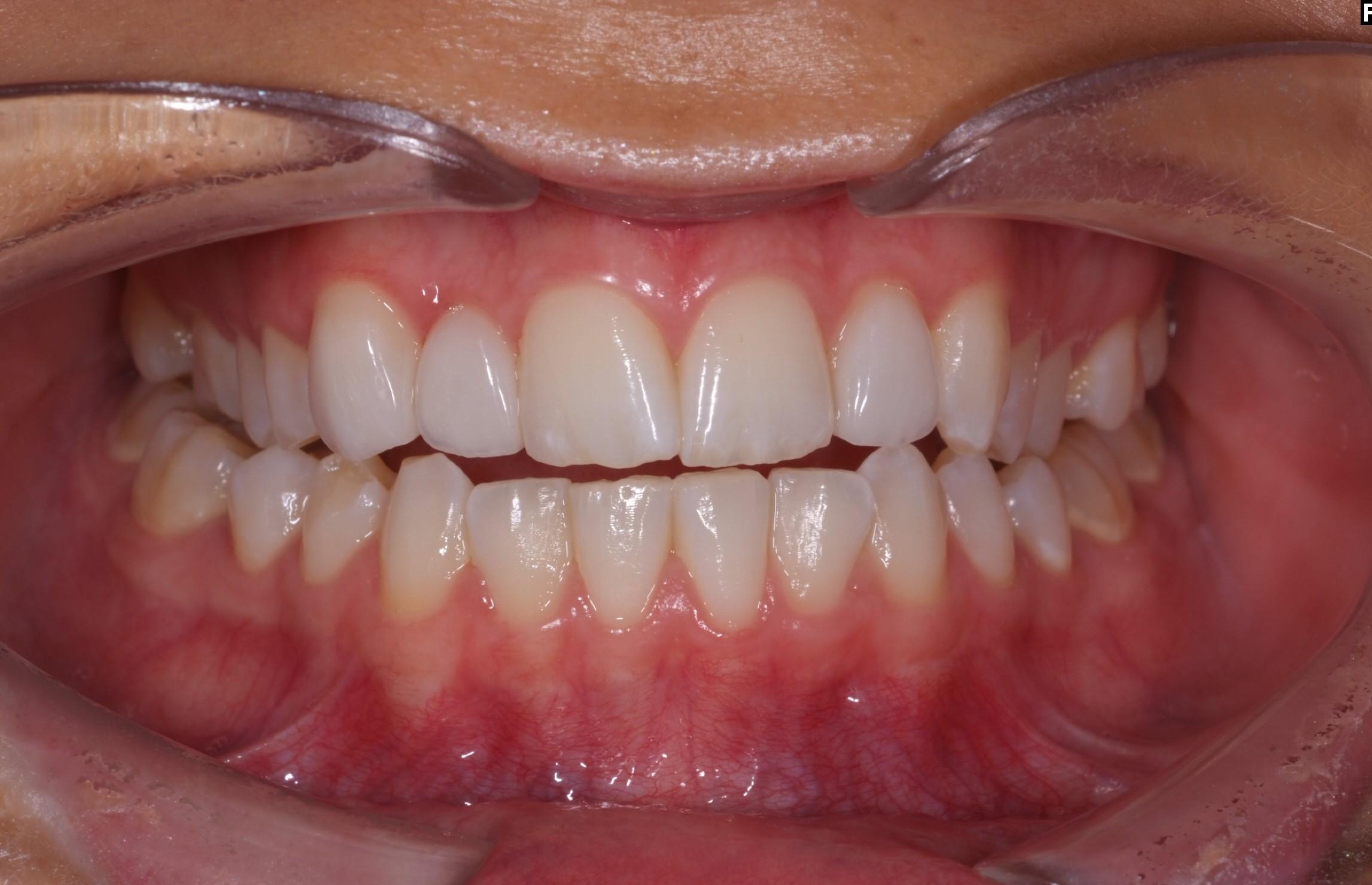 Efter - Roterande tänder