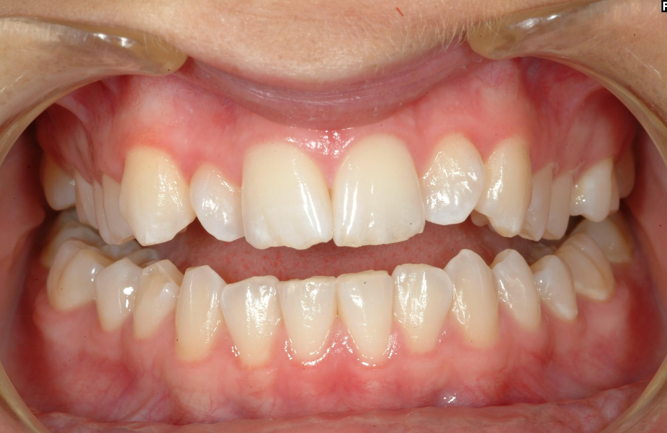 Före - Roterande tänder
